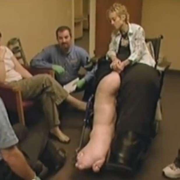 Rimozione di vene su una gamba un forum