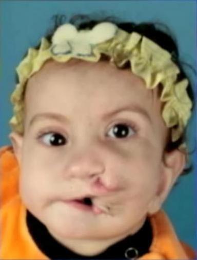 Bambina con due bocche