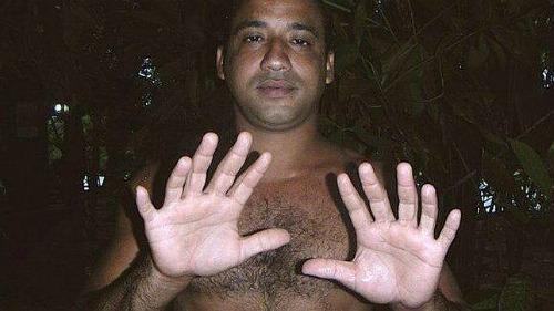 Uomo con 24 dita
