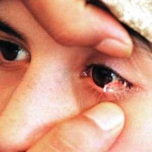 Kura Nitya: a garota que chora lágrimas de pedra
