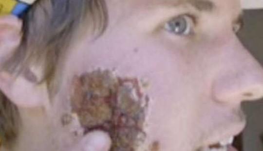 Virus Divora Carne