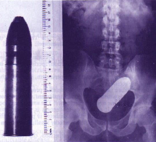Radiografia Munizione