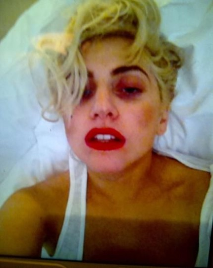 Lady Gaga Morta