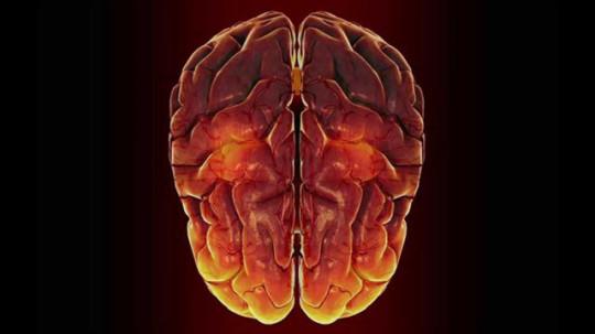 Scorregge Cervello