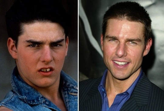 Tom Cruise da adolescente