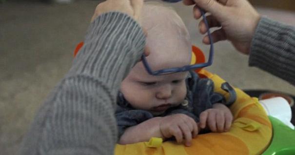 Bambino con malattia agli occhi